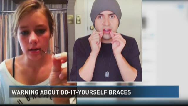 Do it yourself braces ksdkcom warning dangerous diy braces trend continues to grow solutioingenieria Images